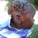 This baby with a severely infected ear visited our clinic.
